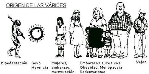 Riesgo de varices factores predisponentes