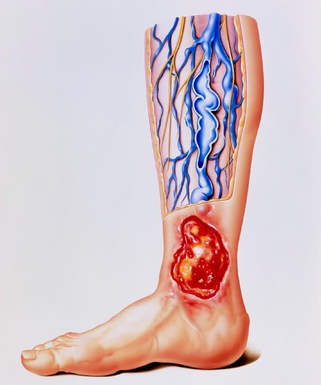 Ulcera en la pierna