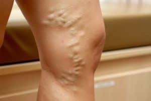 Varices en la pierna