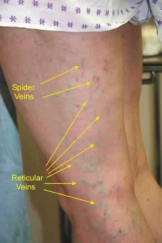 reticulară varicoză varicoză membre
