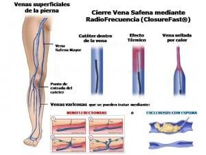 Radiofrecuencia de varices (ClosureFast) y Flebectomias / Esclerosis con espuma