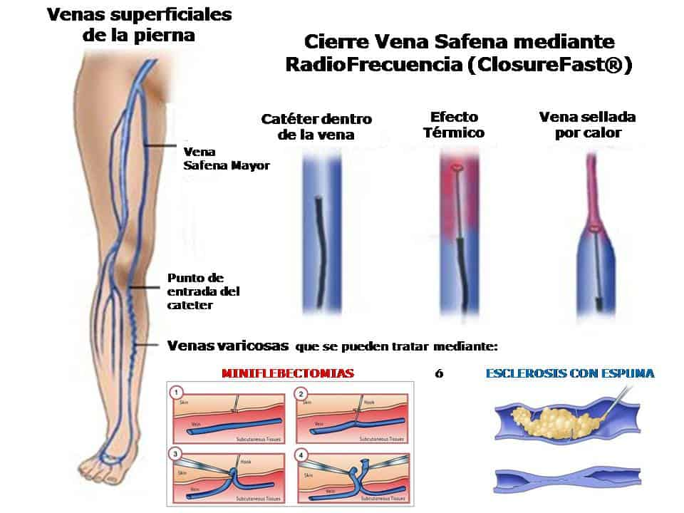 tratamiento para los varices en las piernas