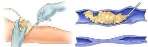 Esclerosis de varices con espuma. Esquema