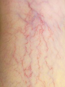 Arañas vasculares