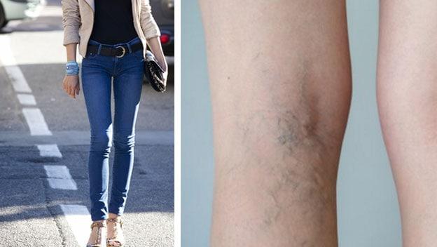 skinny jeans y varices