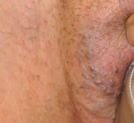 Varices en la vulva
