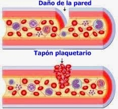Trombo plaquetario