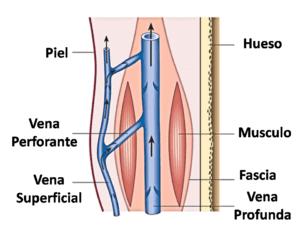 superficial y sistema venoso profundo-varices en murcia