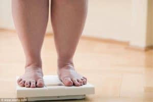 varices y obesidad
