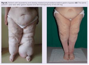 Lipedema - Linfedema 2º a obesidad y cirugia bariatrica-pre y post