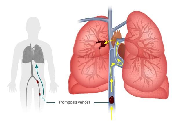 Embolia pulmorar - Varic.es en Murcia